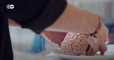 Nuestro cerebro es lo que comemos | DW Documental
